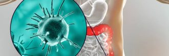 Cómo saber si tienes candidiasis intestinal