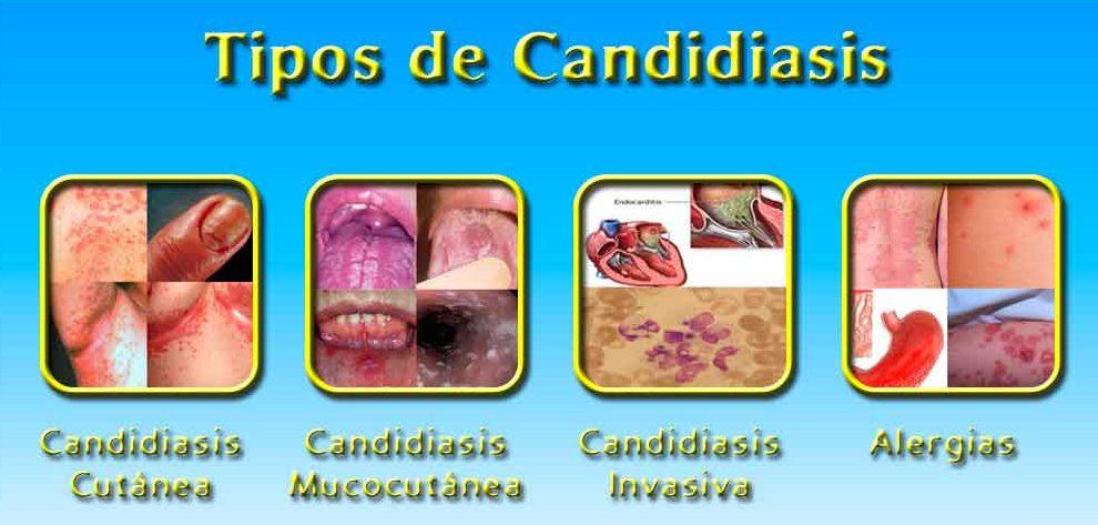 tipos de candidiasis existentes
