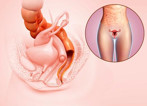 ilustración candidiasis vaginal