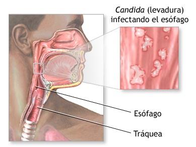 candidiasis esofágica explicación ilustrada
