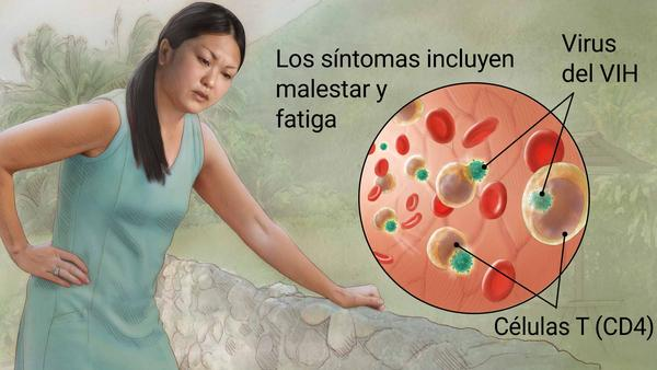 candidiasis esofágica VIH