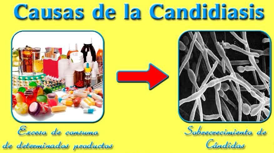 causas candidiasis esofágica