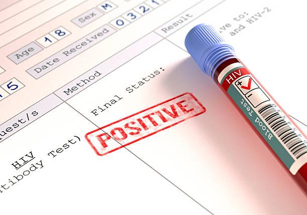 positivo virus inmunodeficiencia humana candidiasis esofágica