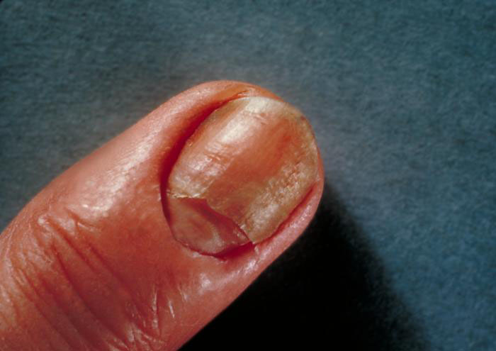 candidiasis hombre uña infectada