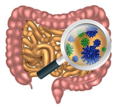 hongos intestinos candidiasis