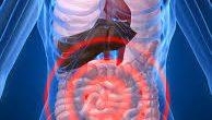 Candidiasis intestinal