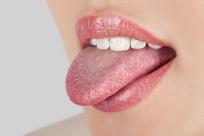 lengua con candidiasis oral