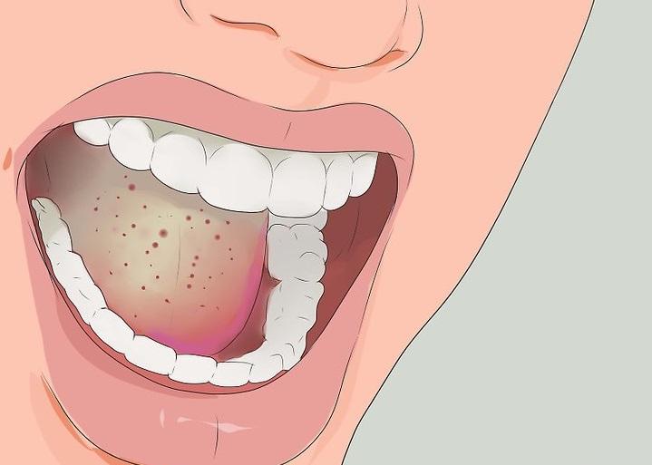 candidiasis oral infección bucal