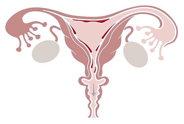 flujo vaginal candidiasis