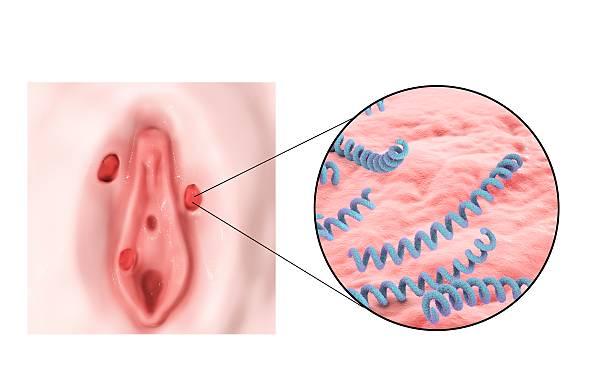 flujo candidiasis vagina